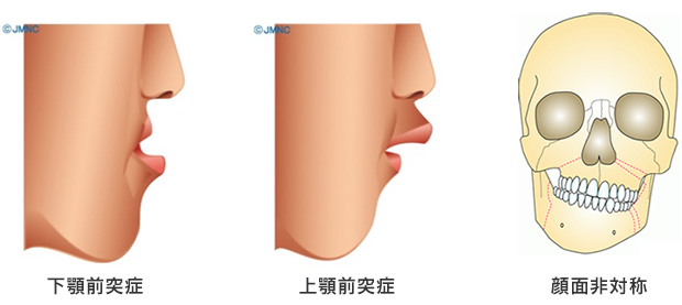 症 顎 変形